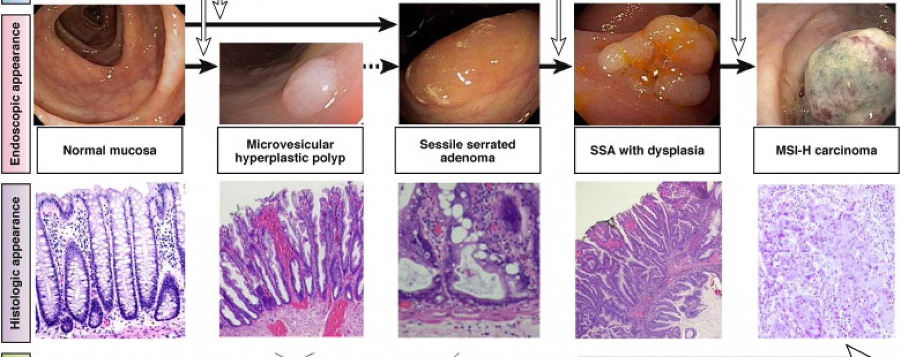 What to do About Sessile Serrated Adenomas