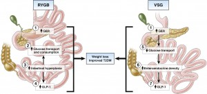 Different effects of RYGB and VSG on intestinal glucose handling